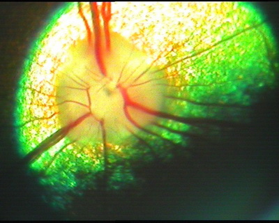 Рис 16. Грейхаунд, 7 лет, клинически здоров. Диск зрительного нерва.