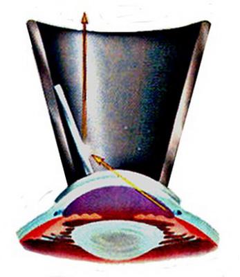 Рис 7а. Схематическое изображение гониоскопической линзы и хода лучей в ней при исследовании иридо-корнеального угла