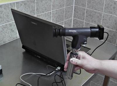Рис 10. Видео-офтальмоскопическая система CamView, подключенная к компьютеру